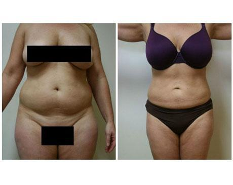 Case 26 - Liposuction Gallery (Before & After)