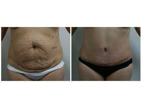 Case 2746 - Tummy Tuck Gallery (Before & After)