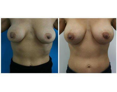 Case 276 - Breast Lift and Reduction Gallery (Before & After)
