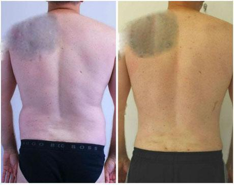 Case 3051 - Liposuction Gallery (Before & After) (3)