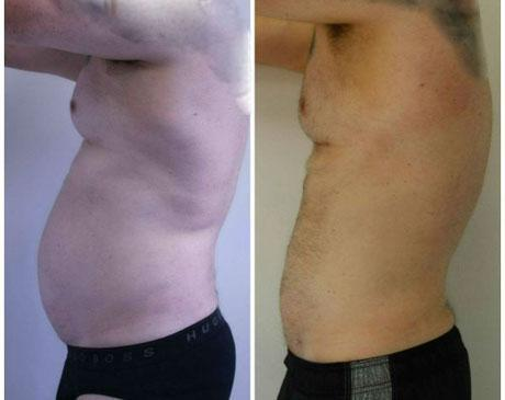 Case 3051 - Liposuction Gallery (Before & After)
