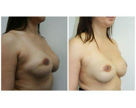 Case 3081 - Breast Augmentation Gallery (Before & After) (2)
