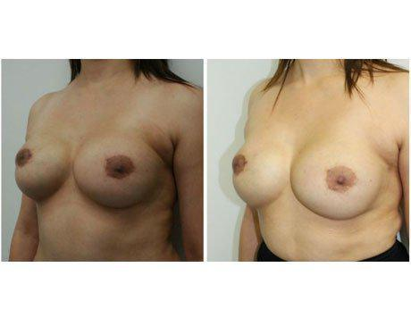 Case 3081 - Breast Augmentation Gallery (Before & After) (3)