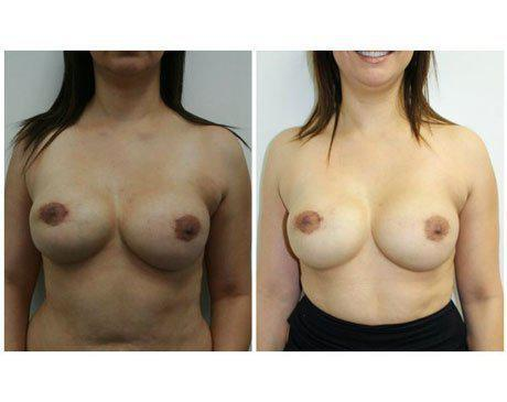 Case 3081 - Breast Augmentation Gallery (Before & After)