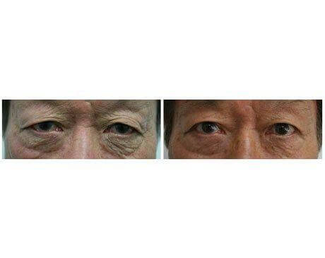 Case 3132 - Blepharoplasty Gallery (Before & After)