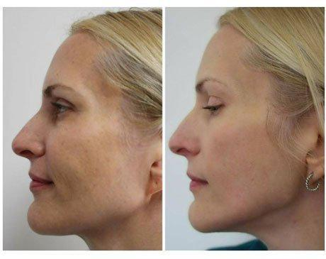 Case 3209 - C02 Laser Resurfacing Gallery (Before & After) (2)