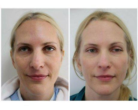 Case 3209 - C02 Laser Resurfacing Gallery (Before & After)