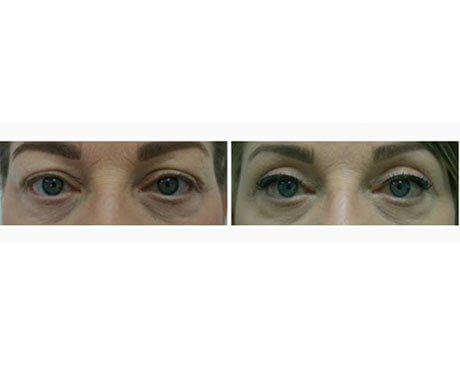 Case 3215 - Blepharoplasty Gallery (Before & After)