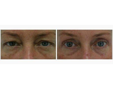 Case 3257 - Blepharoplasty Gallery (Before & After)