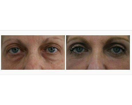Case 3313 - Blepharoplasty Gallery (Before & After)
