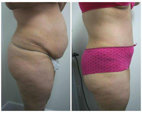 Case 340 - Liposuction Gallery (Before & After) (2)