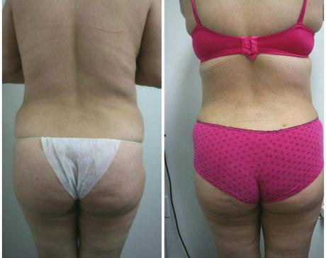 Case 340 - Liposuction Gallery (Before & After) (3)