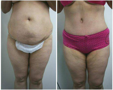 Case 340 - Liposuction Gallery (Before & After)