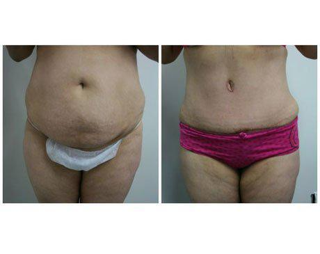 Case 340 - Tummy Tuck Gallery (Before & After)