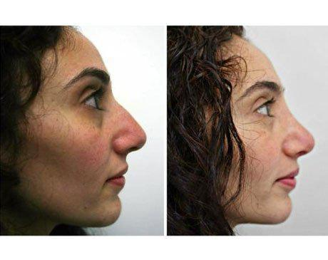 Case 341 - Rhinoplasty Gallery (Before & After) (2)