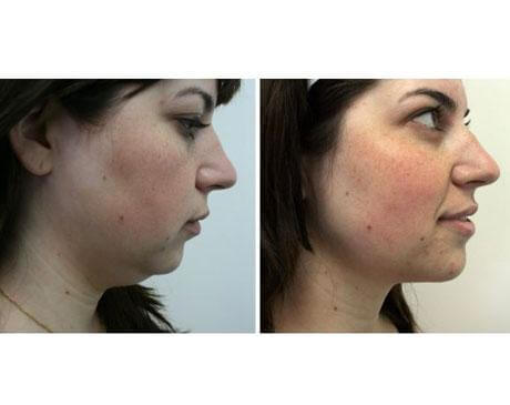 Case 3540 - Liposuction Gallery (Before & After)