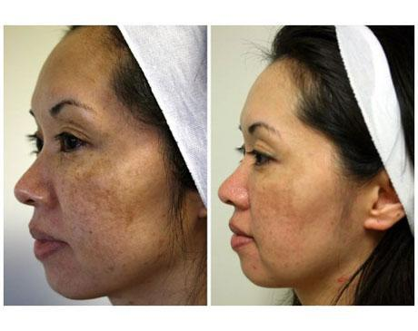 Case 3584 - Chemical Peels Gallery (Before & After) (2)