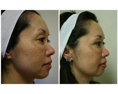Case 3584 - Chemical Peels Gallery (Before & After) (3)