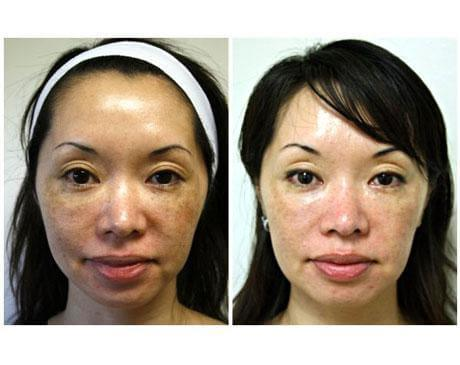 Case 3584 - Chemical Peels Gallery (Before & After)