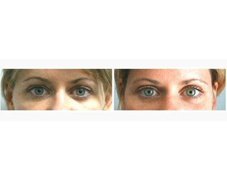 Case 3610 - Blepharoplasty Gallery (Before & After)