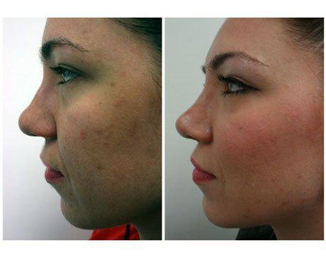 Case 3878 - Rhinoplasty Gallery (Before & After) (2)