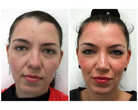 Case 3878 - Stem Cell Face Lift Gallery (Before & After) (2)