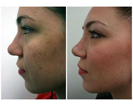 Case 3878 - Stem Cell Face Lift Gallery (Before & After) (3)