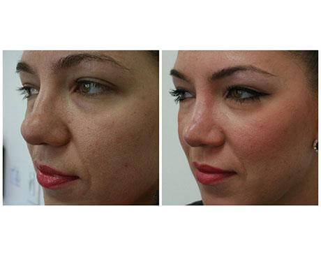 Case 3878 - Stem Cell Face Lift Gallery (Before & After)
