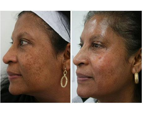 Case 3894 - Chemical Peels Gallery (Before & After) (2)