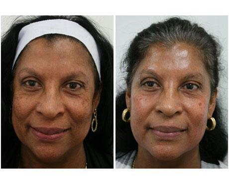 Case 3894 - Chemical Peels Gallery (Before & After)