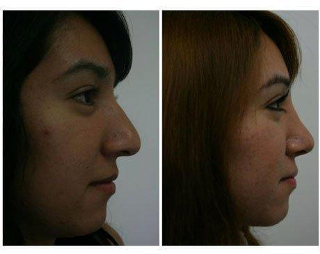 Case 4064 - Rhinoplasty Gallery (Before & After) (2)