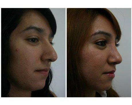 Case 4064 - Rhinoplasty Gallery (Before & After) (3)