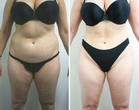 Case 4078 - Liposuction Gallery (Before & After)