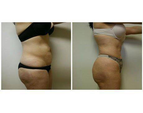 Case 408 - Liposuction Gallery (Before & After) (2)