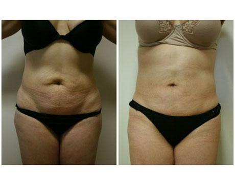 Case 408 - Liposuction Gallery (Before & After)
