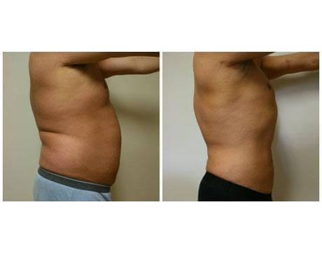 Case 423 - Liposuction Gallery (Before & After) (2)