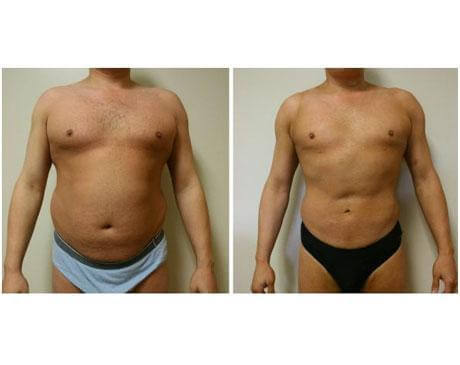 Case 423 - Liposuction Gallery (Before & After)