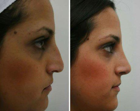 Case 4346 - Rhinoplasty Gallery (Before & After) (2)