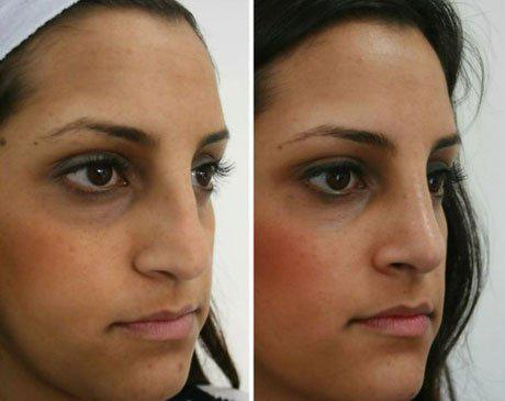 Case 4346 - Rhinoplasty Gallery (Before & After) (3)