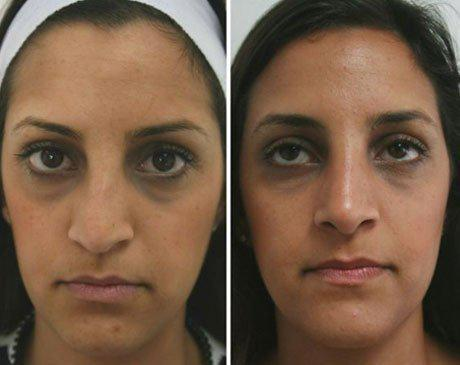 Case 4346 - Rhinoplasty Gallery (Before & After)