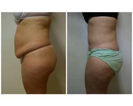 Case 4430 - Tummy Tuck Gallery (Before & After) (2)