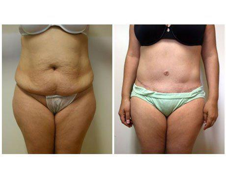 Case 4430 - Tummy Tuck Gallery (Before & After)