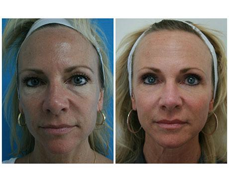 Case 4486 - Stem Cell Face Lift Gallery (Before & After)