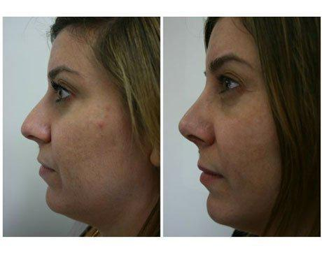 Case 470 - Rhinoplasty Gallery (Before & After) (2)