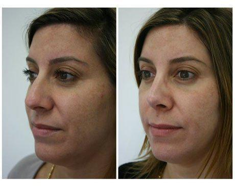 Case 470 - Rhinoplasty Gallery (Before & After) (3)