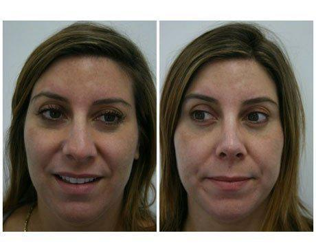 Case 470 - Rhinoplasty Gallery (Before & After)