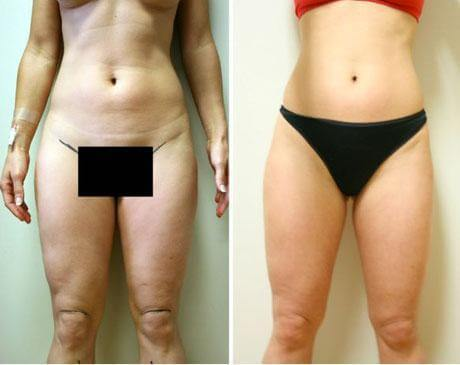Case 4709 - Liposuction Gallery (Before & After)