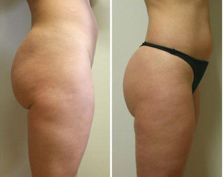 Case 4709 - Liposuction Gallery (Before & After) (2)
