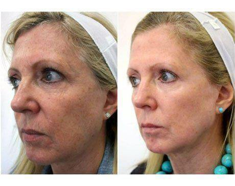 Case 5175 - C02 Laser Resurfacing Gallery (Before & After)