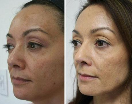 Case 5195 - Chemical Peels Gallery (Before & After) (2)